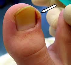 Welche Medikamente von gribka unter den Nägeln